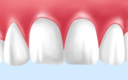 ホワイトニングで美しい白い歯に