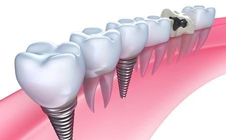 失ってしまった歯の機能と見た目を取り戻すための選択肢