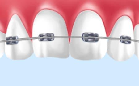 マルチブラケット矯正歯科装置