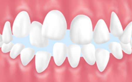 歯並びや噛み合わせの改善も大切です
