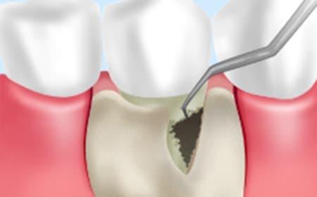 STEP6 歯周外科治療
