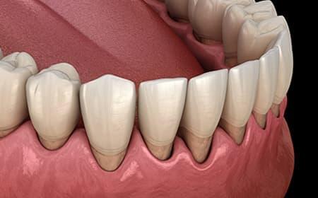 重度の歯周病にも対応いたします