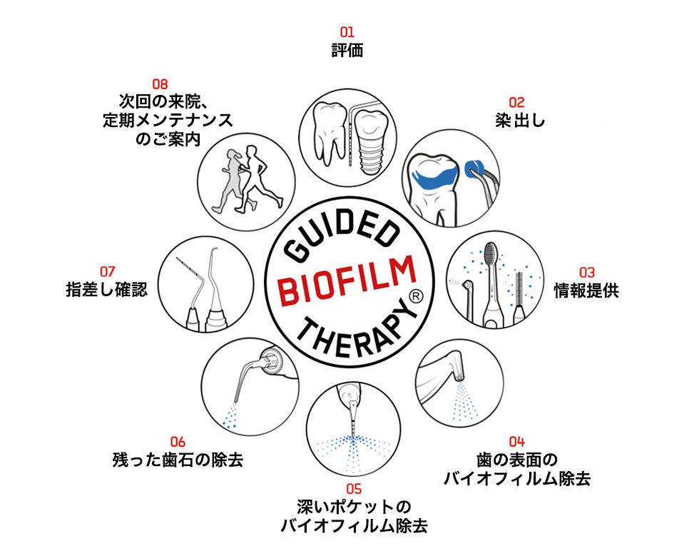 GBT(Guided Biofilm Therapy)とは