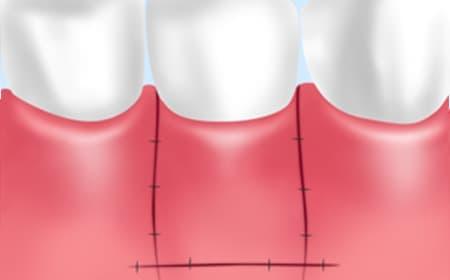 FGG(Free Gingival Graft)