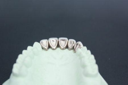 三好歯科自由が丘保険の前歯の白い被せ物の裏側