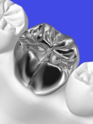 三好歯科自由が丘歯の被せ物保険の金属