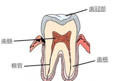 三好歯科 自由が丘歯の断面図 歯冠部 歯根 歯髄 根管