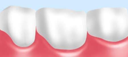 三好歯科 自由が丘 歯の被せ物ジルコニアセラミックの図