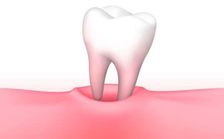 三好歯科 自由が丘 親知らずの移植イメージ画像