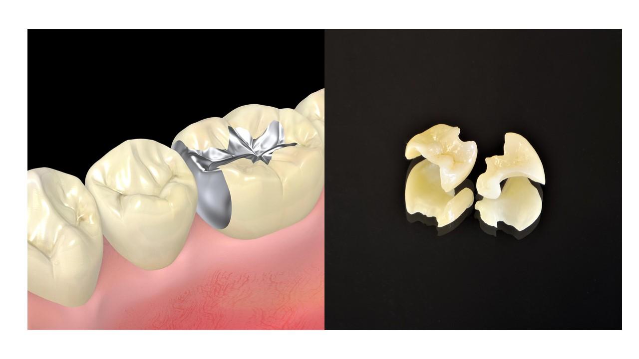 歯の詰め物の素材(マテリアル)とそのメリットデメリット 2021年最新版|三好歯科 自由が丘|金属の歯の詰め物とセラミックの歯の詰め物