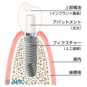 インプラントは歯を失ってしまった場合の1つの選択肢