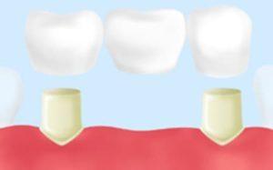 三好歯科 自由が丘のブリッジ(Br)治療のイラスト