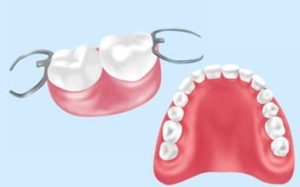 三好歯科 自由が丘の総入れ歯と部分入れ歯のイラスト