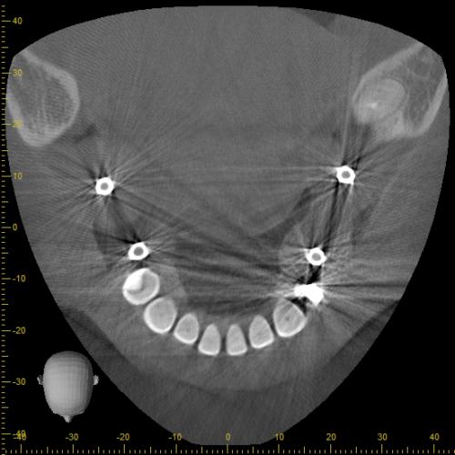【症例】失った歯に対するストローマンガイド・外科用ステントを用いたインプラントオペ