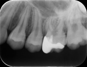 【症例】MTAセメントを用いた直接覆髄法による歯の神経の保存