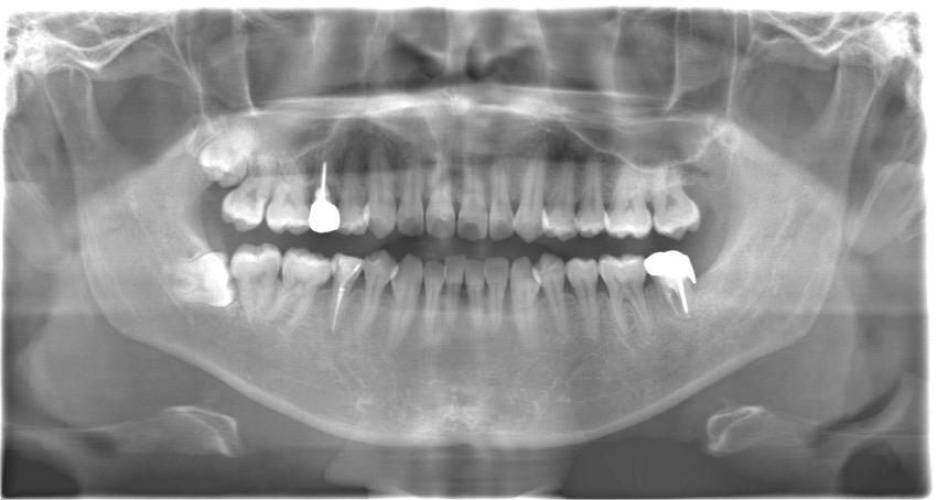 【症例】歯質の少ない歯に対する再根管治療とMTAセメントによる根管充填