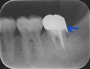 三好歯科 自由が丘 再根管治療症例0619解説画像1