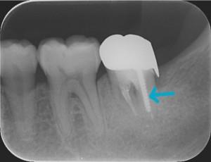 三好歯科 自由が丘 再根管治療症例0619解説画像2