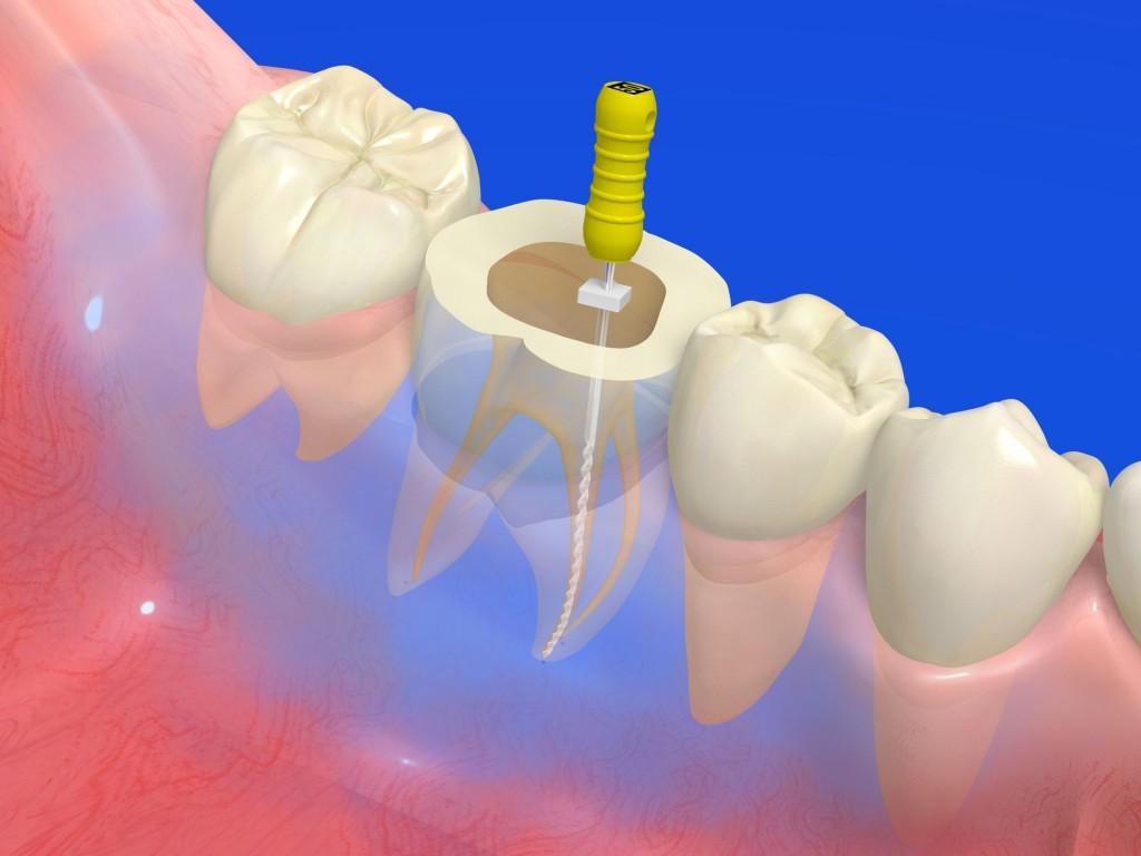 三好歯科 自由が丘 根管治療とは