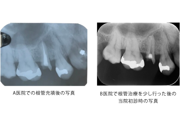 根尖孔から押し出された異物の除去 比較