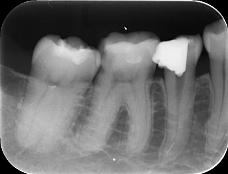 【症例】根管治療の偶発症に対してのリカバリー2 ~根管内に取り残された異物の除去~