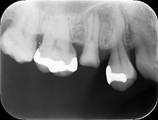 【症例】根管治療の偶発症に対してのリカバリー1 ~根尖孔から押し出された異物の除去~