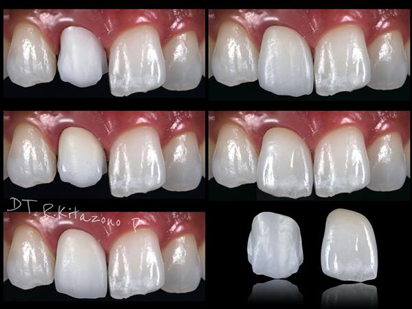 三好歯科 自由が丘_審美歯科の流れとポイント_歯科技工士による作製過程