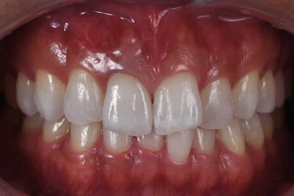 三好歯科 自由が丘_審美歯科の流れとポイント_治療後の口腔内画像アイコン後