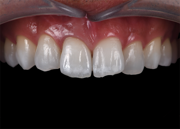 三好歯科 自由が丘_審美歯科の流れとポイント_審美歯科治療後の画像