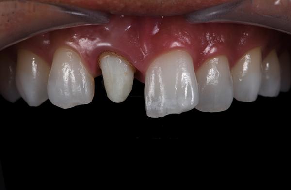 三好歯科 自由が丘_審美歯科の流れとポイント_被せものを入れる前の画像