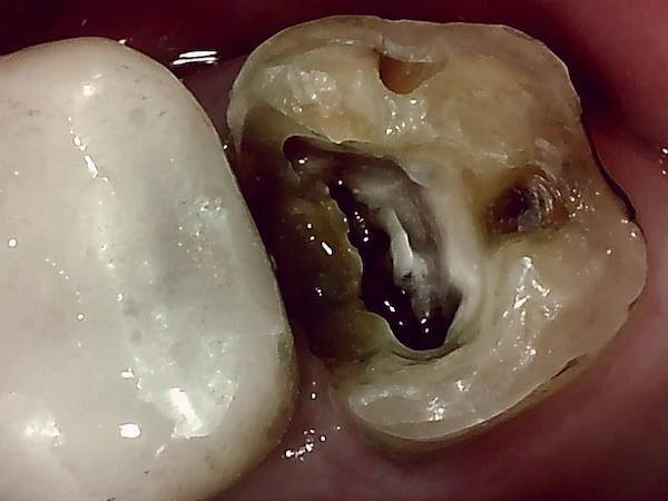 【症例】他院での検診で見落とされた大きなう蝕(虫歯)に対する精密根管治療〜その2〜|う蝕除去後の歯の画像|自由が丘の歯医者-三好歯科自由が丘