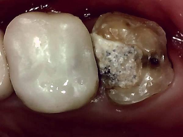 【症例】他院での検診で見落とされた大きなう蝕(虫歯)に対する精密根管治療〜その2〜|処置前の歯の画像|自由が丘の歯医者-三好歯科自由が丘