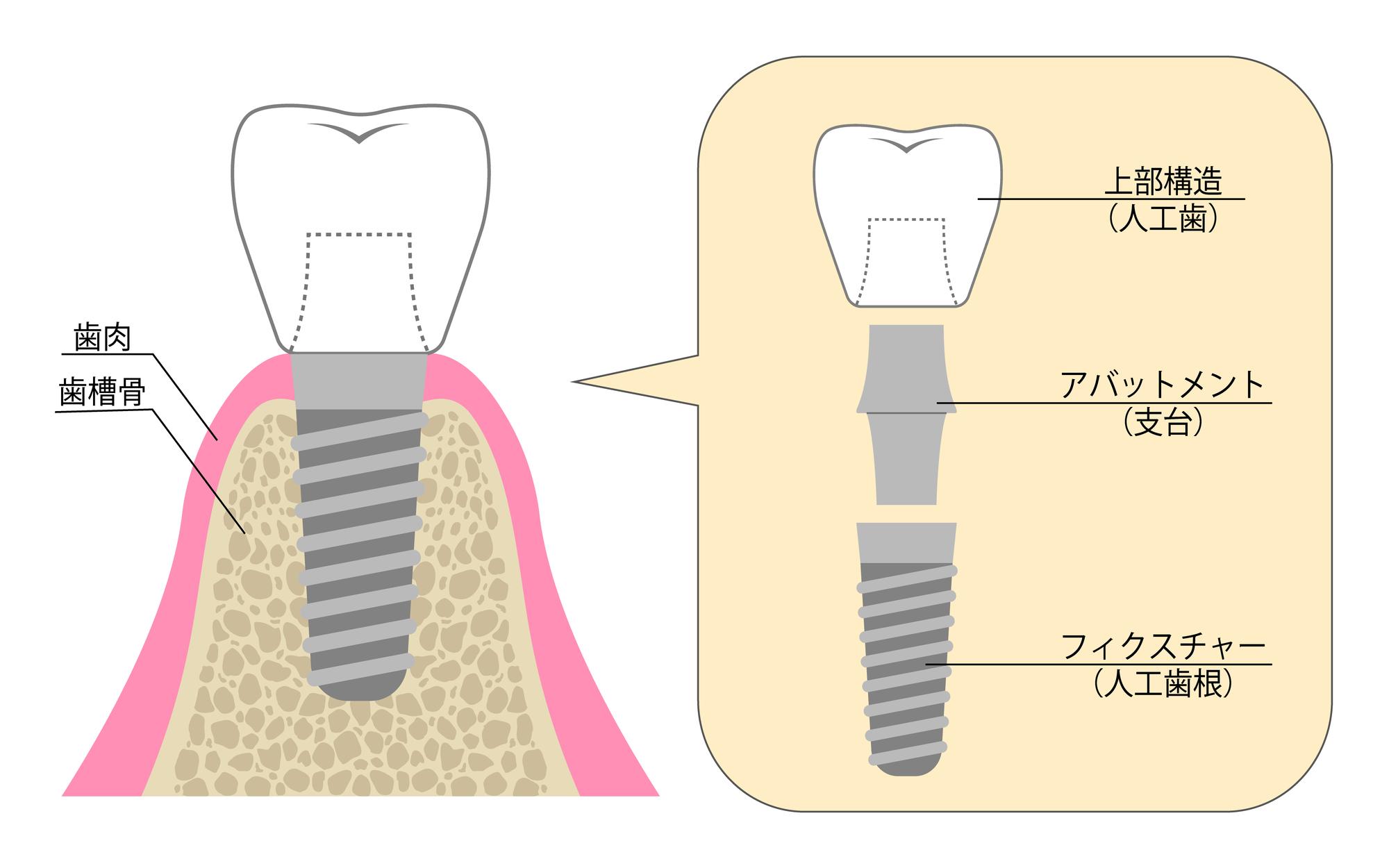 インプラント治療に関する様々なQ&A|インプラントの構造のイラスト|自由が丘の歯医者 三好歯科自由が丘