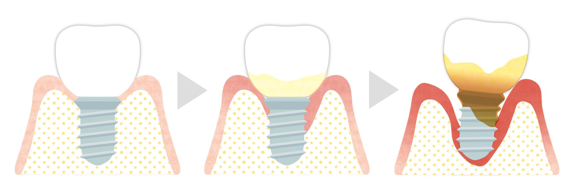インプラント治療に関する様々なQ&A|インプラント周囲炎の進行イメージ図|自由が丘の歯医者 三好歯科自由が丘